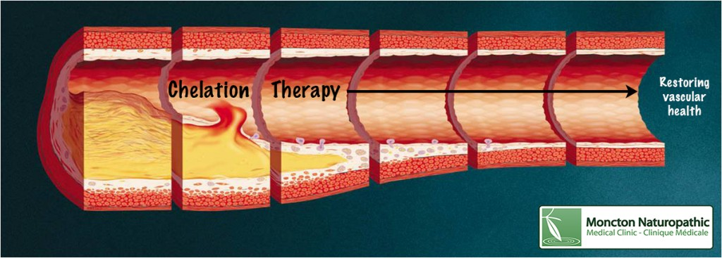 Chelation Therapy Moncton for Atherosclerosis